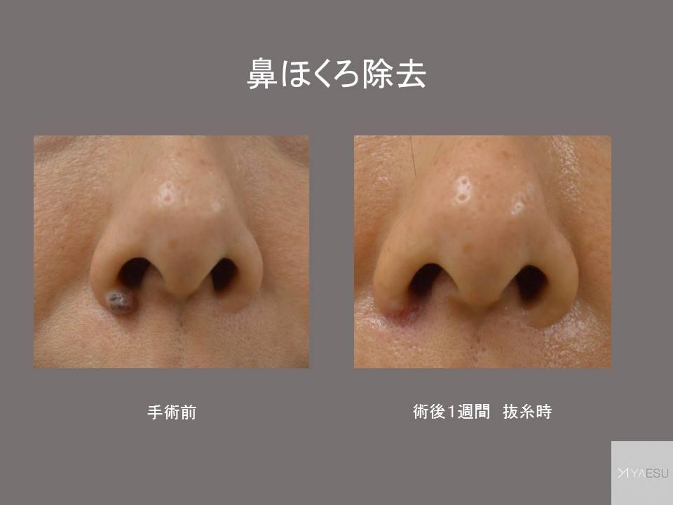 ホクロ 除去 科 皮膚