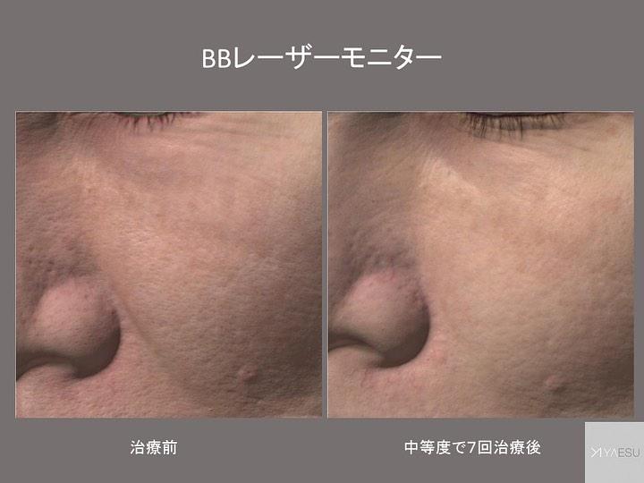 の レーザー 鼻 毛穴 毛穴(鼻・頬)の黒ずみ・開きのケア クリニックの紹介