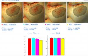 肝斑のシスペラ効果