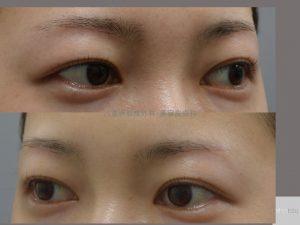眉下切開後3か月の傷跡
